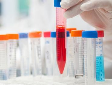 Diagnostyka w postępowaniu onkologicznym - gorące tematy 2017